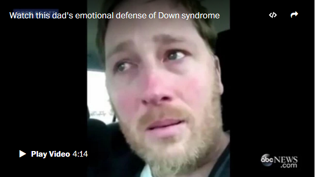 Why this father says 'Down syndrome is the best thing that ever happened to me'