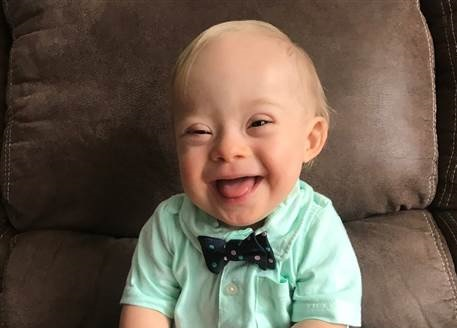 New Gerber baby with Down Syndrome